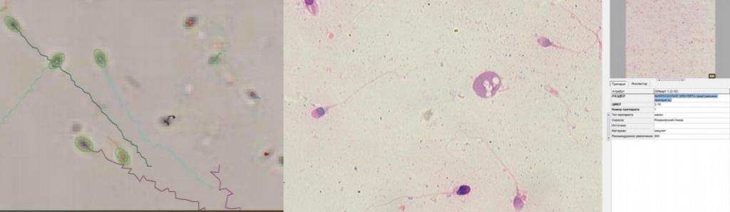МЕКОС-Ц2 - анализатор спермограммы